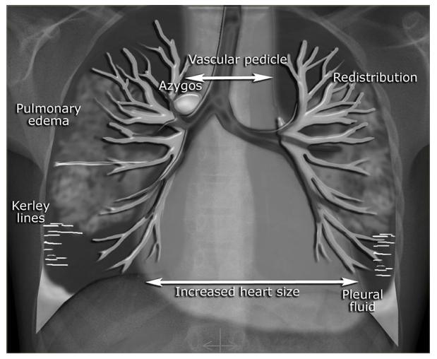 Tests for Gallbladder Cancer  CTCA