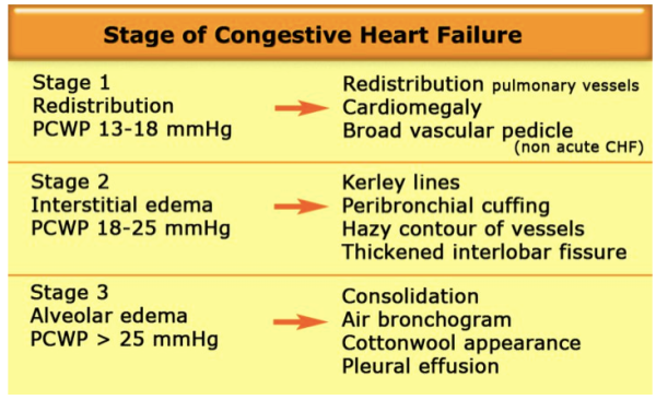 congestive heartfailure Compare risks and benefits of common medications used for heart failure find the most popular drugs, view ratings, user reviews, and more.